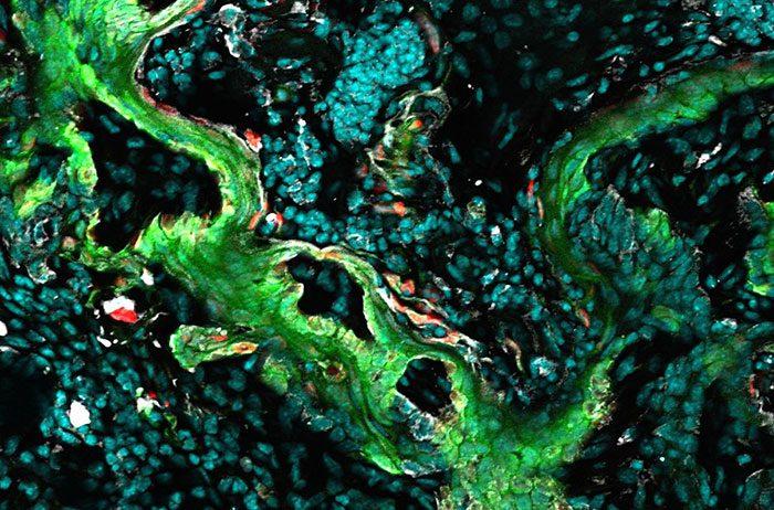 squamous carcinoma cells