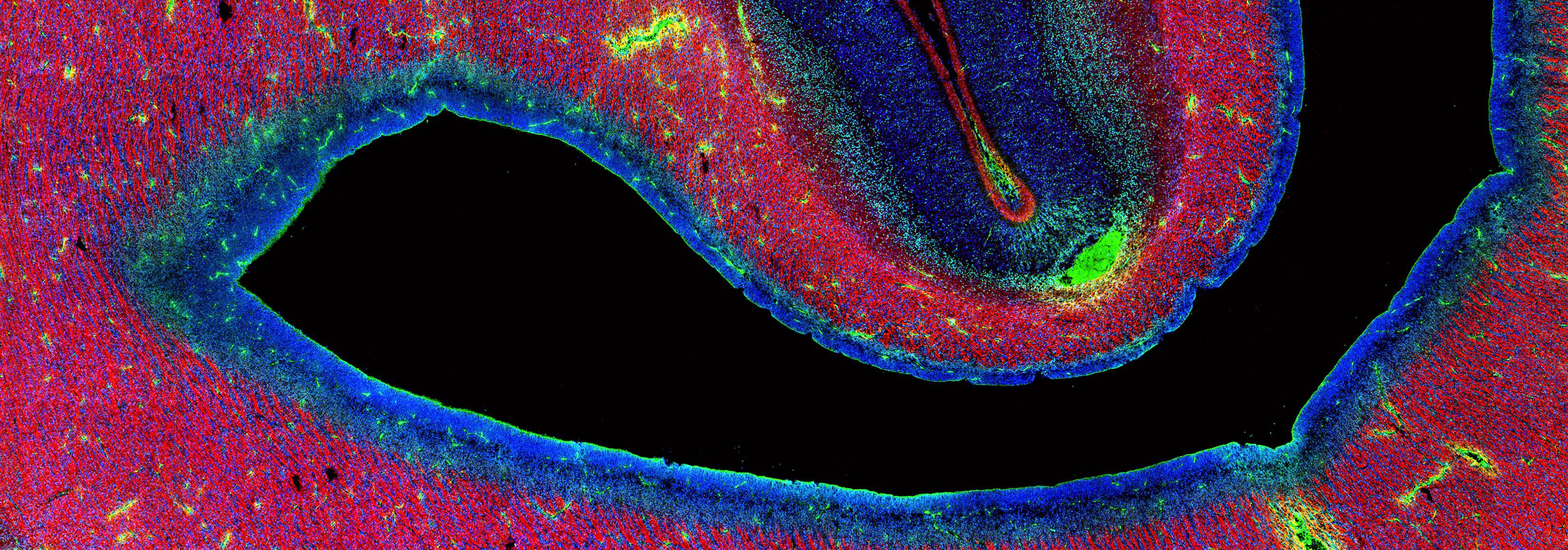 The subplate (green) as it sits directly below the developing cortex