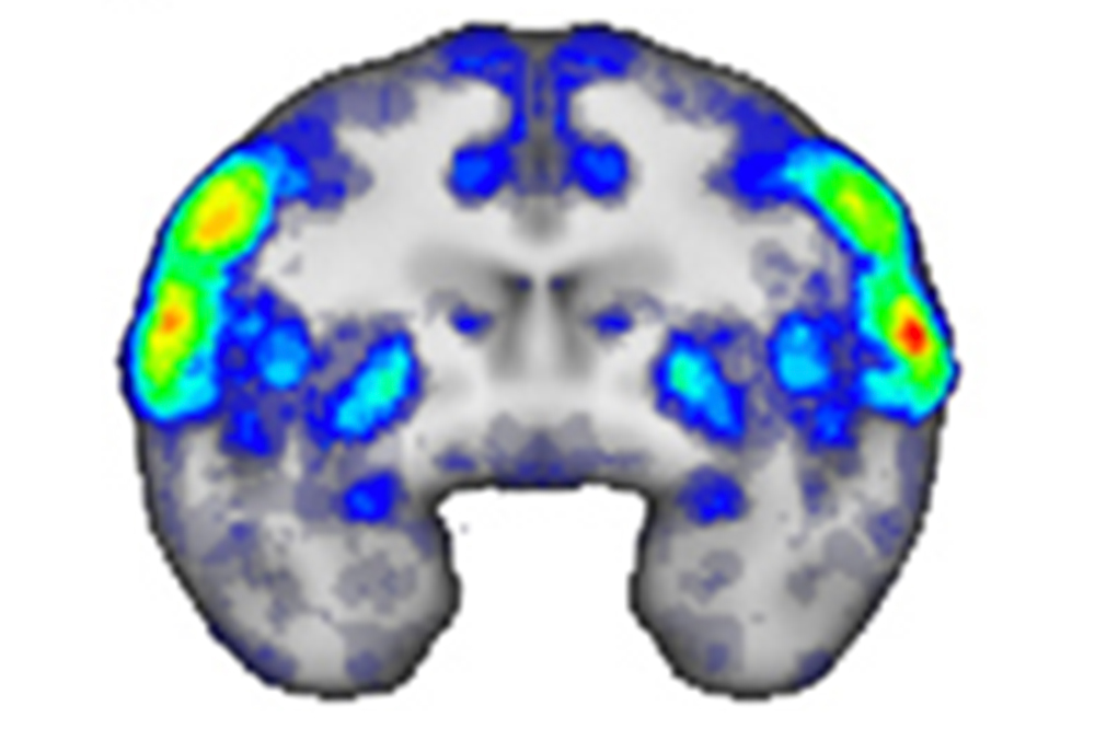 The above MRI scan was recorded as monkeys generated facial expressions. Colored regions indicate areas active during expression-making, with warmer colors corresponding to increased activation.