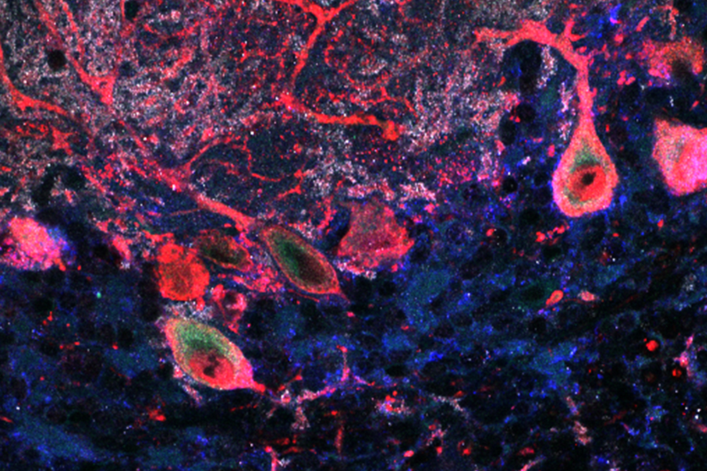 ASTN2 naturally expressed by purkinje cells in the mouse cerebellum