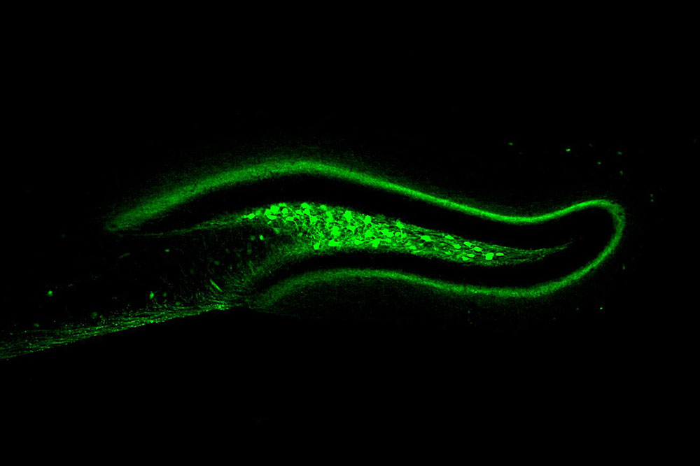 Activation of hD2R neurons