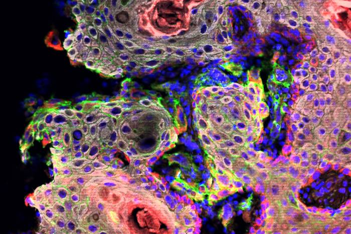 Tumor stem cells