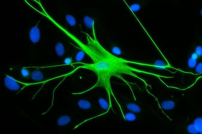 Human astrocytes