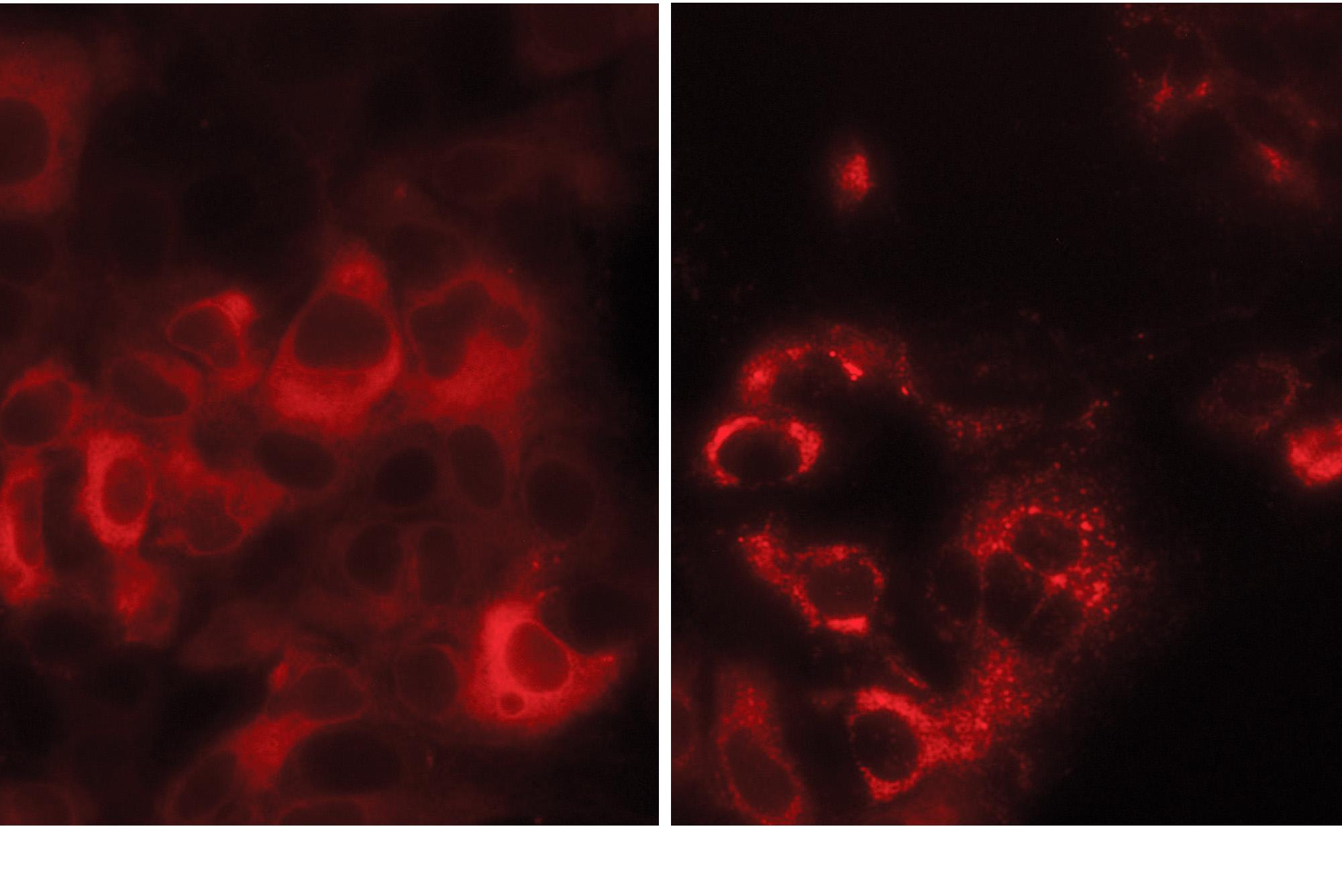 MEM41B proteins