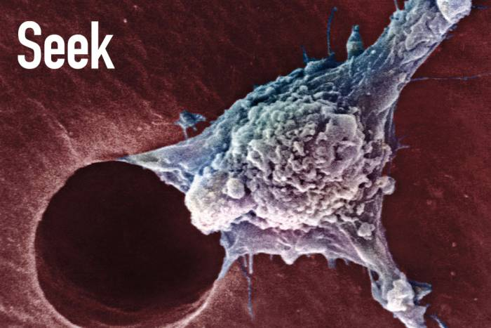 tumor image