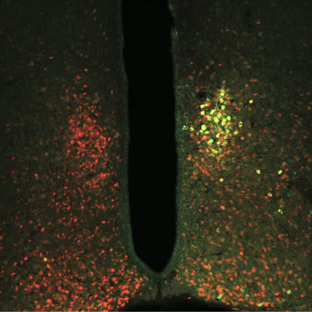 Magnetic ion channel (green) was targeted to glucose-sensing neurons (red) in mouse brain