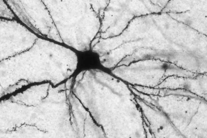 BLA stellate neuron