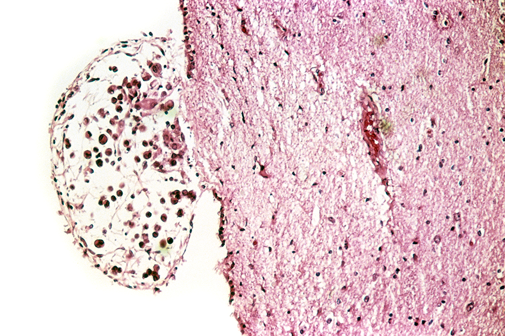 A cross section of a metastatic brain tumor from a patient