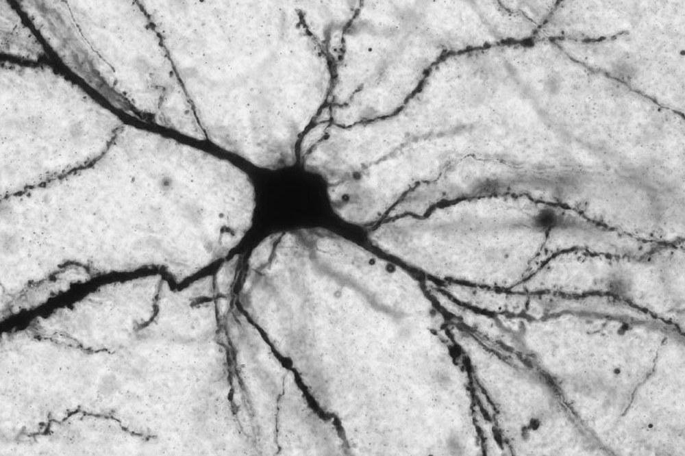 Acetyl-L-carnitine acts on neurons (pictured here) that release the neurotransmitter glutamate. Researchers believe that, by altering glutamate levels, the molecule affects systems involved in depression.